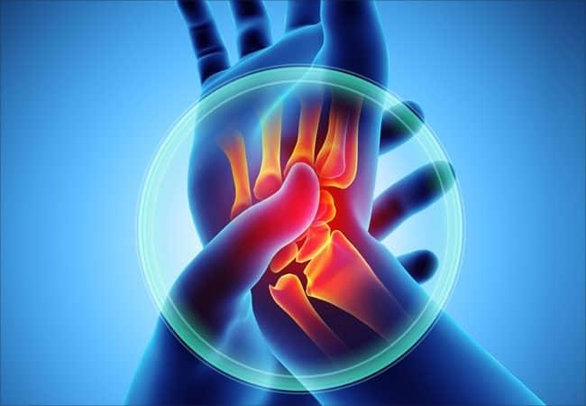 Is It Osteoarthritis or Rheumatoid Arthritis?
