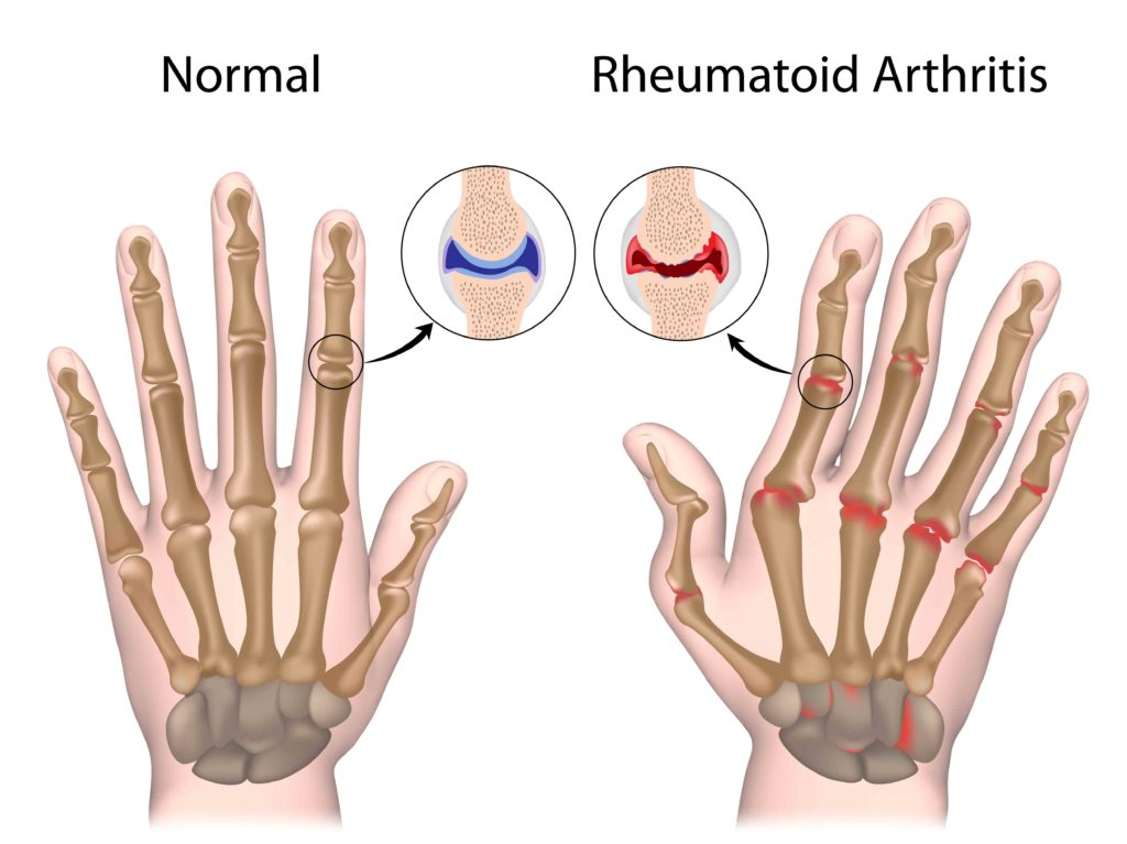 know if you have arthritis